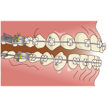 orthodontics046