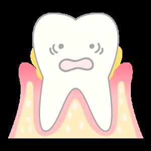 periodontosis_mechanism03