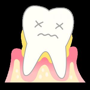 periodontosis_mechanism04